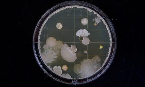 bacteria growing in a petri dish