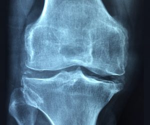 x-ray of an inflamed knee
