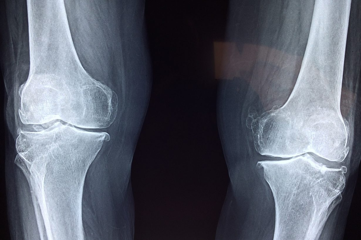 x-ray of two knees