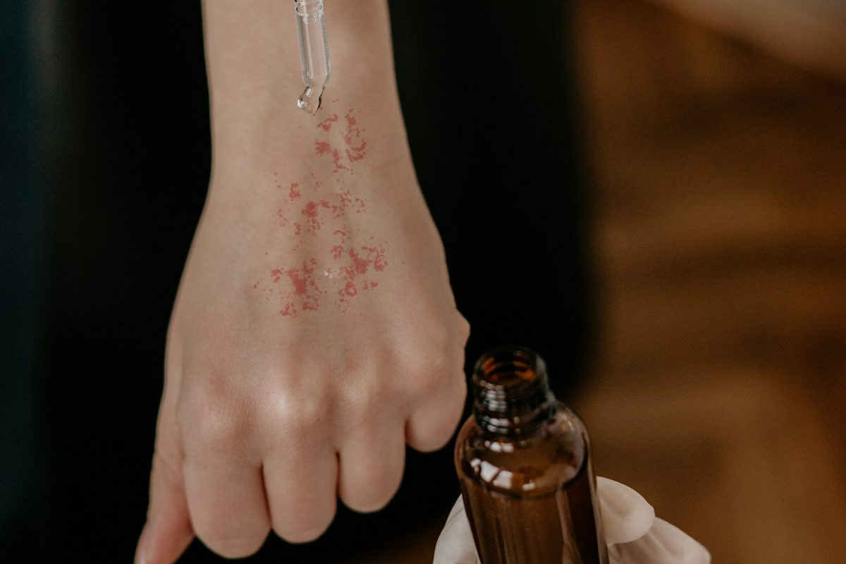 photo of a hand with a rash