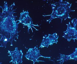 close up, digital graphic of cancer cells
