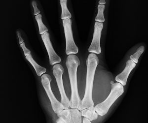 X-Ray of a person's hand