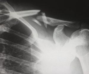 X-ray of a person's broken collar bone
