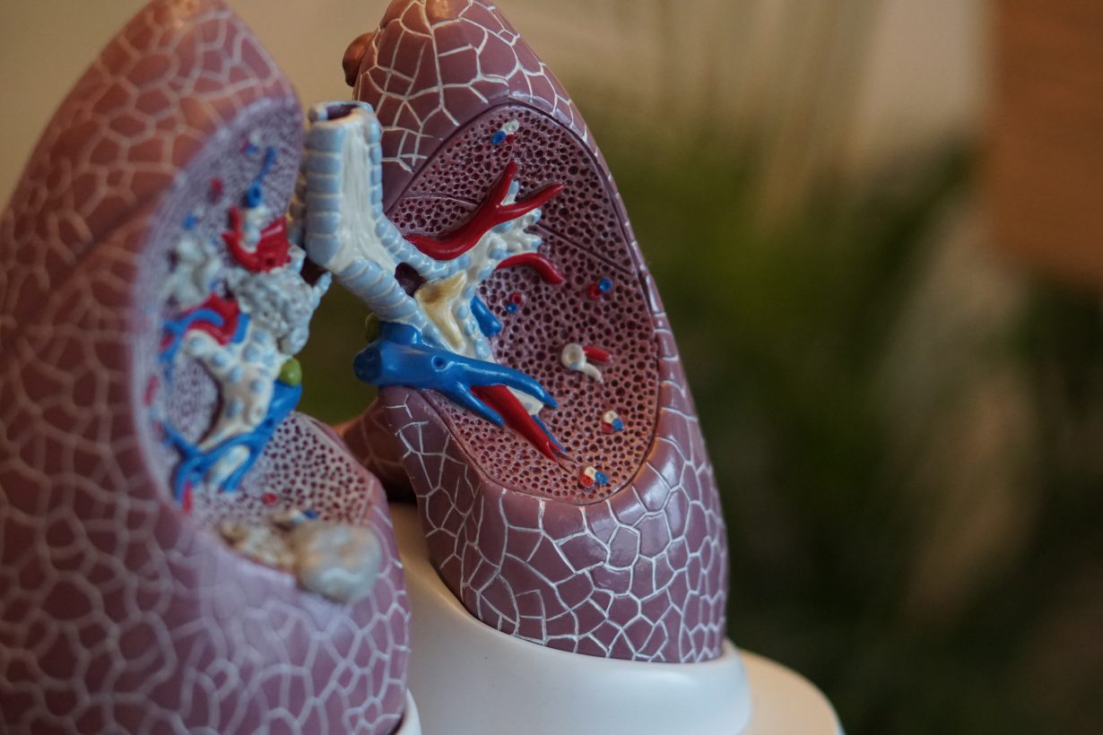 anatomical model of lungs
