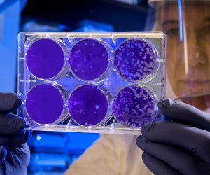 lab scientists holding petri dishes