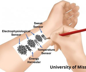 biomedical device