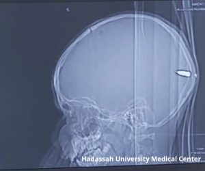 X-Ray of a boy's skull with a bullet in it